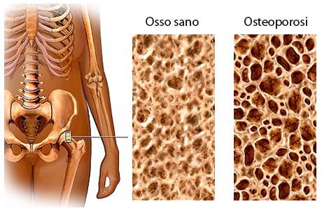 Osteoporosi: come prevenirla
